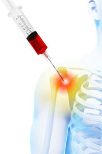PRP Therapy For Pain Queens NYC