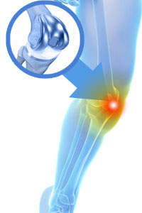 Knee Pain Surgery NYC
